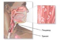 Эзофагит грибкового происхождения