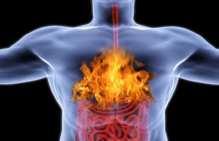 Рефлюкс-эзофагит часто протекает нераспознанным