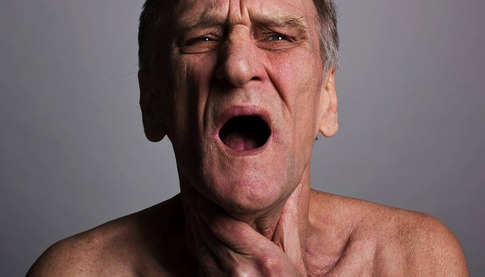 Мужчина страдает дисфагией