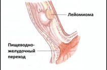 Что такое лейомиома пищевода: причины развития, признаки заболевания, методы лечения