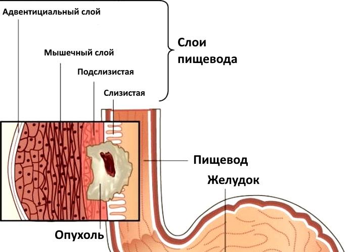 Ограниченный опухолевый процесс без поражения ближайших лимфатических узлов