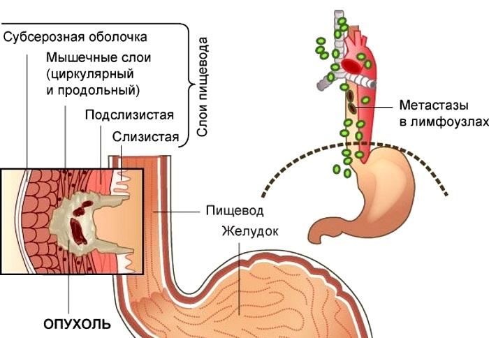 рак пищевода лечение продолжительность жизни