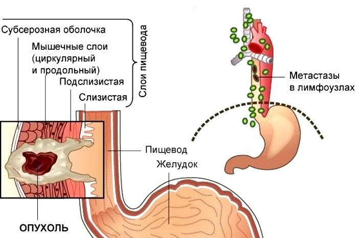 При 3 стадии определяются метастазы в ближайших (регионарных) лимфатических узлах