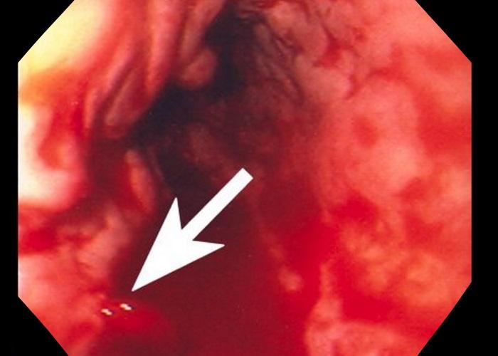 Кровотечение в пищеводе или в горле thumbnail