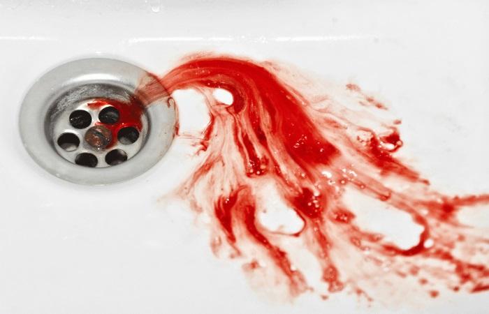 Главный признак кровотечение из пищевода – кровавая рвота