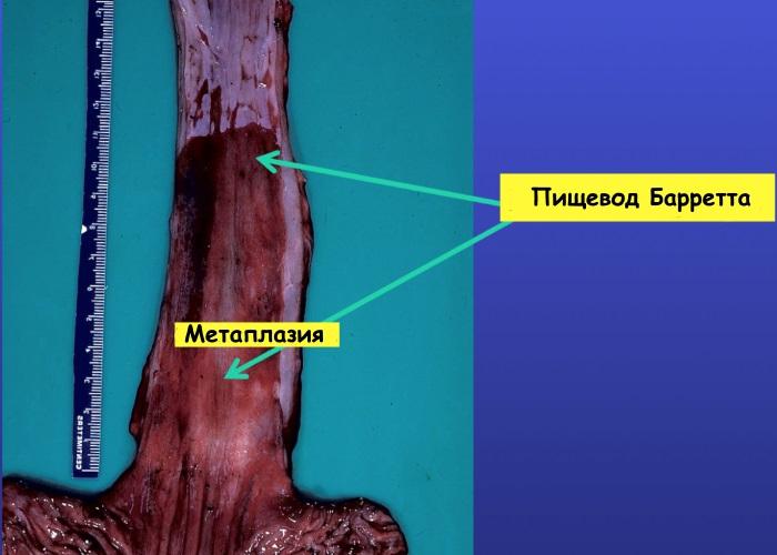 Кишечная метаплазия пищевода