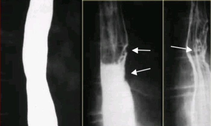 Рентгенологические признаки рака пищевода
