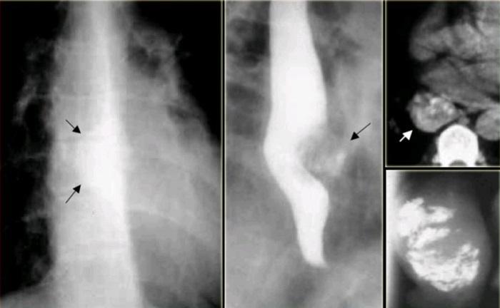 Лейомиомы пищевода на рентгеновских снимках