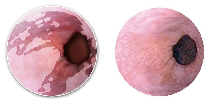 Пищевод под прицелом эндоскопа