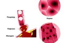Основные методы лечения пищевода Барретта