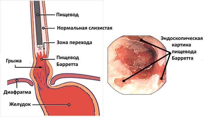 Предраковое заболевание пищевода