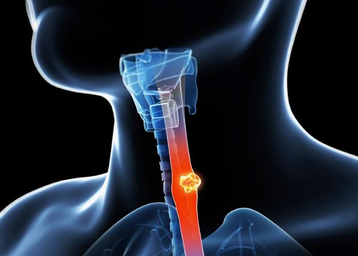 Причины развития рака пищевода полностью не изучены