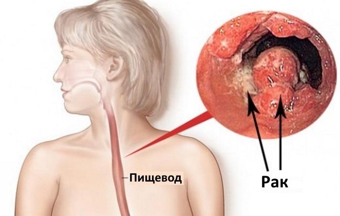 Опухоль пищевода на ЭФГС