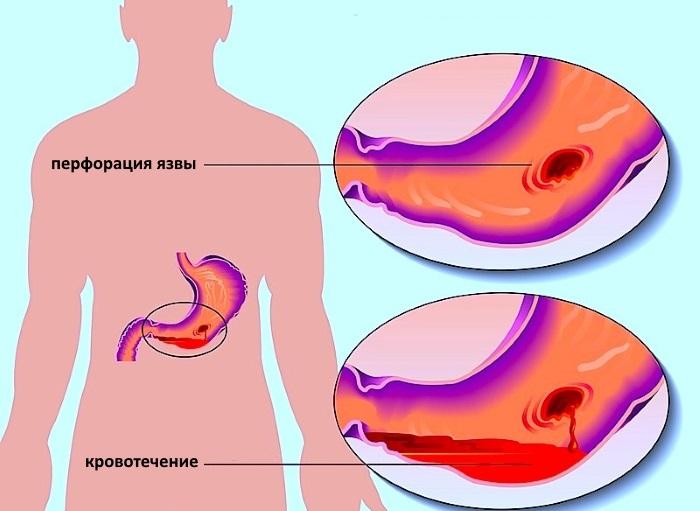 Перофрация язвы желудка и кровотечение
