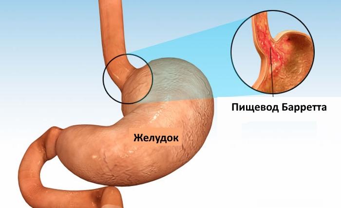 Метаплазия клеток нижней части пищевода