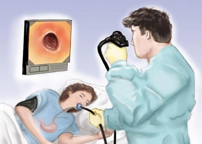 Эндоскопист проводит исследование пищевода и желудка