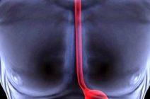 Причины появления и основные симптомы ожога пищевода