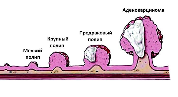 Процесс озлокачествления полипа
