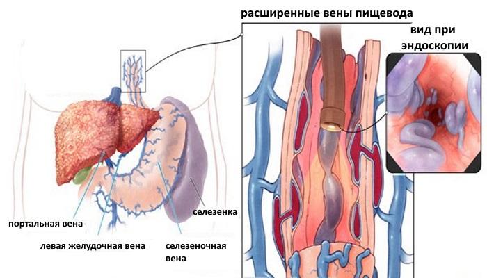 При циррозе печени в большинстве случаев образуется ВРВП