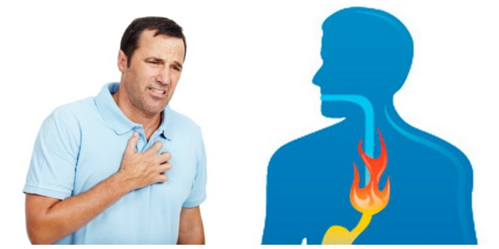 Изжога возникает при рефлюксе содержимого желудка в пищевод
