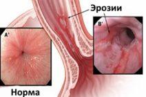 Эрозивный эзофагит: симптомы, течение и лечение