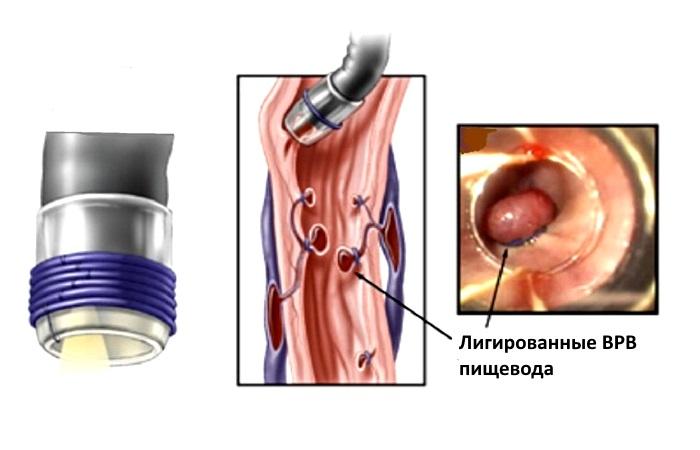 Перевязывание ВРВ пищевода латексными лигатурами