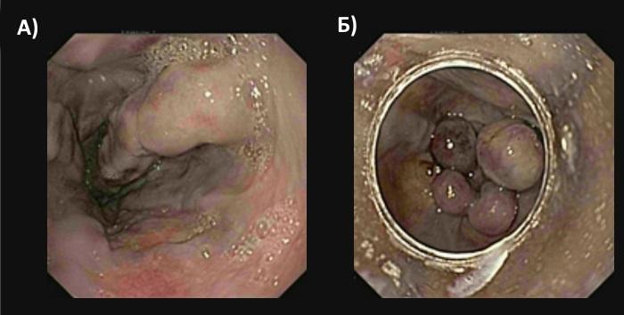 Эндоскопическое лигирование варикозно-расширенных вен пищевода