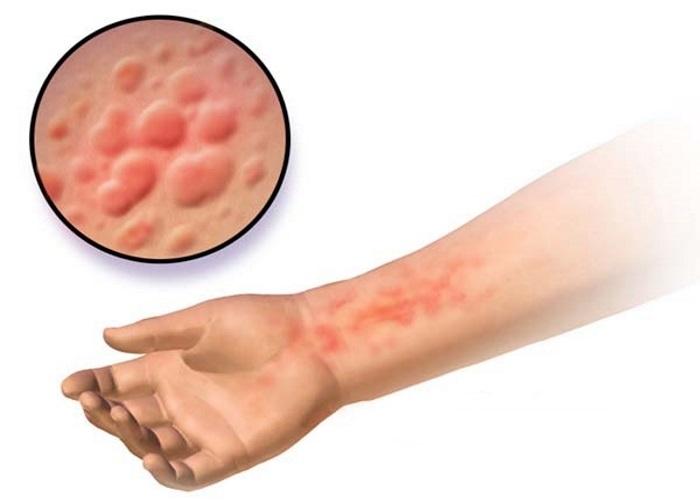 Аллергическая реакция на Омепразол