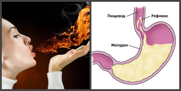 Механизм возникновения рефлюкс-эзофагита