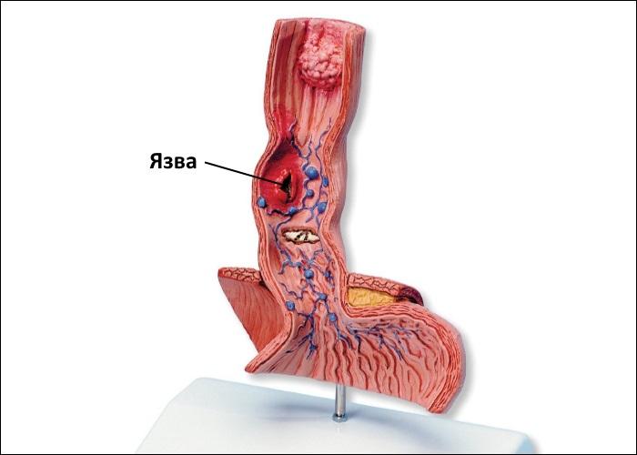 Фронтальный разрез нижней части пищевода и верхней части желудка