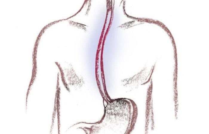 Эрозивный рефлюкс эзофагит – тяжелая форма воспаления пищевода