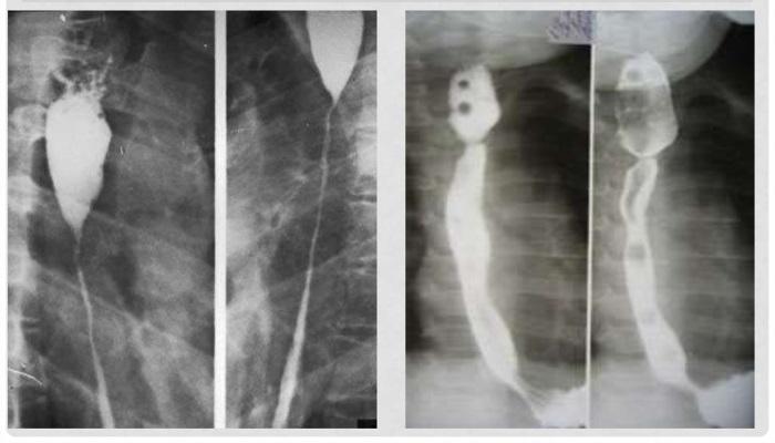 Сужение пищевода на рентгенограмме