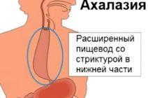 Симптомы и лечение ахалазии кардии пищевода