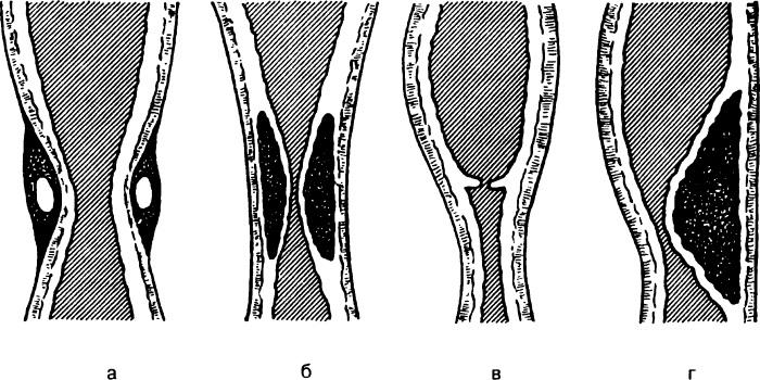 Схематическое изображение врожденного сужения (стеноза) пищевода
