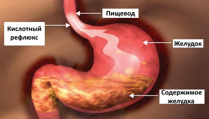 Заброс содержимого желудка в пищевод