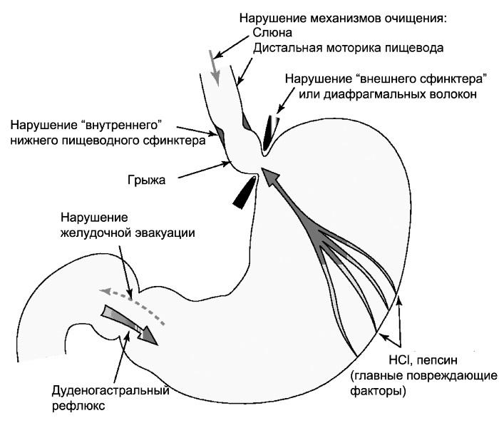 Механизм развития рефлюкс-эзофагита