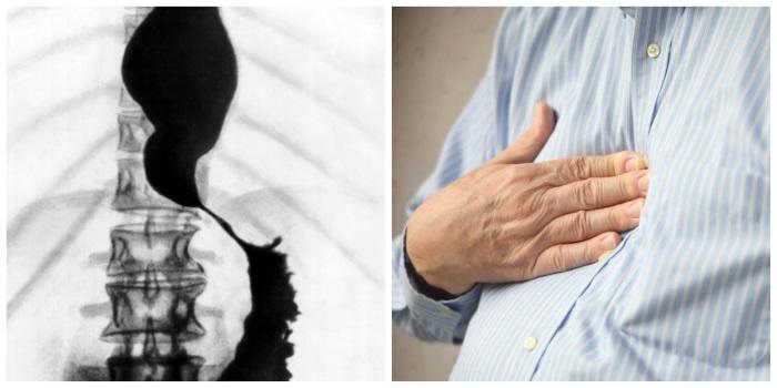 Загрудинная боль при ахалазии кардии